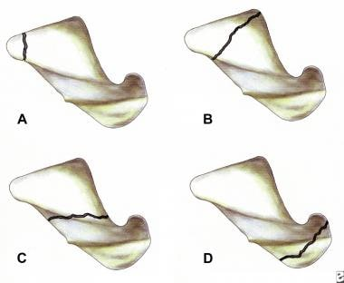 Pictures show the locations of fracture within the
