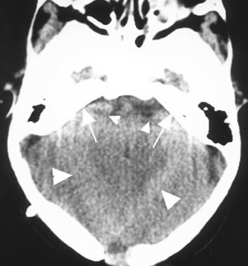 Axial computed tomography scan in a patient with a