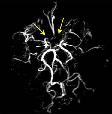Carotid artery stenosis. Axial 3-dimensional maxim