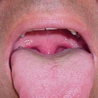 Oropharyngeal examination in 45-year-old man revea