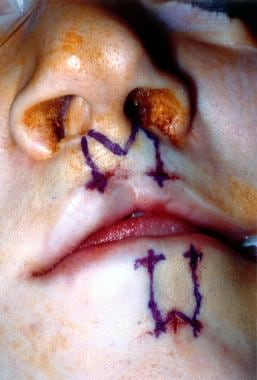Planning for an Abbe flap from the lower lip in a