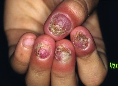 Candidal onychomycosis in a patient with chronic m