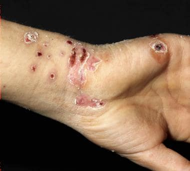 A 16-year-old boy with generalized cowpox. Courtes