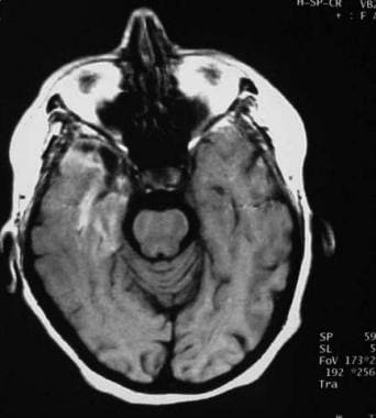 Axial gadolinium-enhanced T1-weighted image reveal