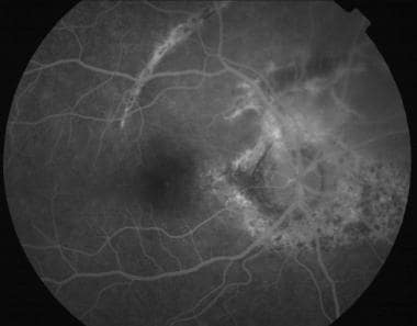 Late-phase fluorescein angiogram in a 23-year-old