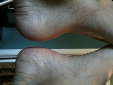 Edema localized to plantar heel on the left foot i