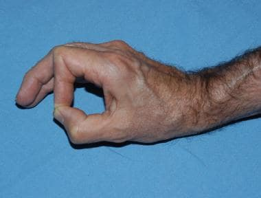 Image in a patient with ulnar neuropathy demonstra