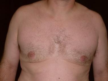Three months postoperative after a superior cresan