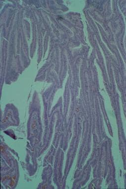Villous adenoma with grade IV invasive carcinoma.