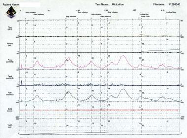 Urinary incontinence. Urodynamic study revealing d