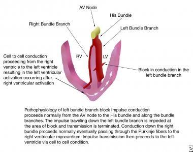 Pathophysiology of left bundle branch block. AV =