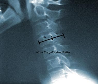 Lateral cervical spine plain radiograph illustrati