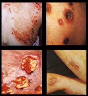 Third-stage gummatous lesions.