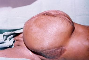 Split-thickness skin grafts were applied to the fl