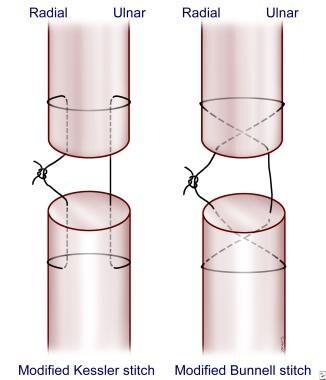 Suture techniques for tendon repair.