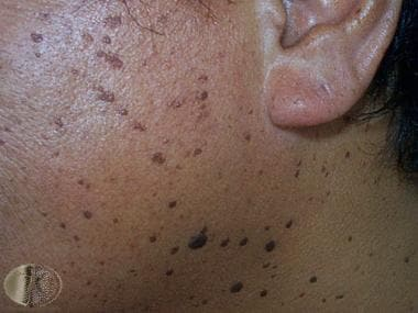 Dermatosis papulosa nigra. Courtesy of DermNet New