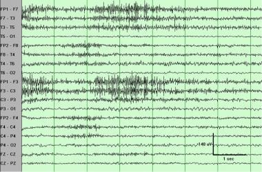 Electromyogram (muscle) artifact. These waveforms