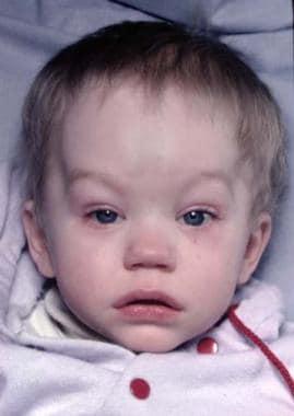Same patient. Metopic craniosynostosis. Postoperat