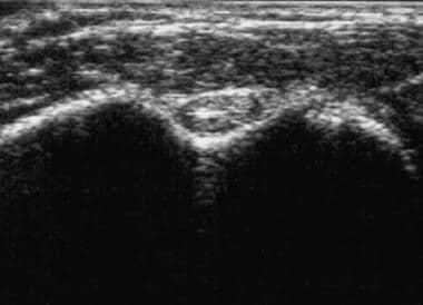 Normal biceps brachii tendon and surrounding tendo