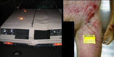 Images following a pedestrian struck by a motor ve