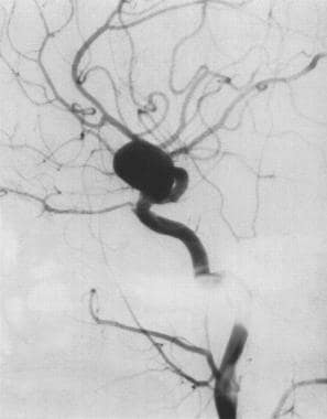 Treatment of intracranial aneurysm by surgical cli