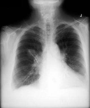 Non–small cell lung cancer. Right upper lobe lesio