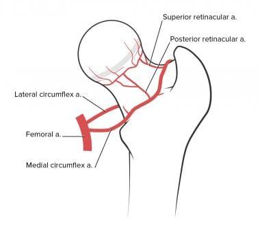 Avascular necrosis of the femoral head. Illustrati