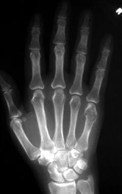 Frontal radiograph of the right hand demonstrates