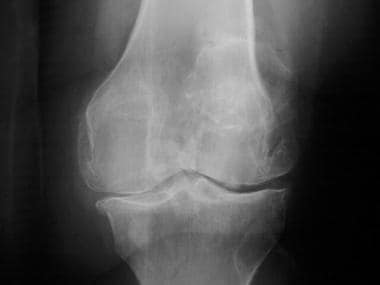 Standing radiograph of the knee reveals narrowing