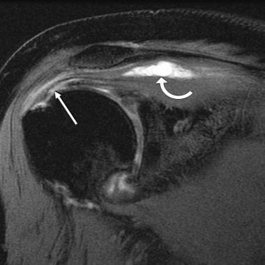 Intramuscular cyst and partial-thickness tear.