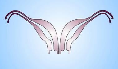 Uterus, müllerian duct abnormalities. Didelphys ut