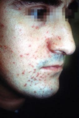 Lupus miliaris disseminatus faciei central facial