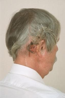 Elderly man with a recurrent squamous cell carcino