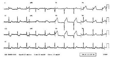 Acute anterior myocardial infarction.