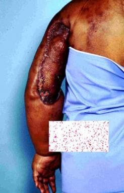 Classic example of angiosarcoma associated with ch