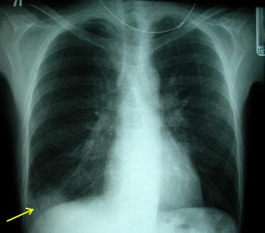 A posteroanterior chest radiograph showing a perip