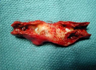 Atherosclerotic plaque removed at time of carotid