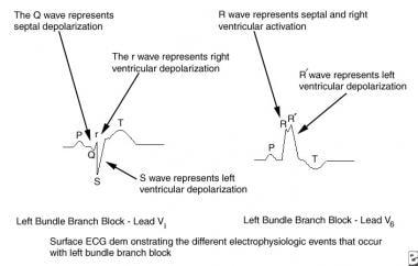ECG depicts electrophysiologic events of left bund