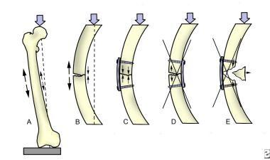 Tension-band principle at the femur.