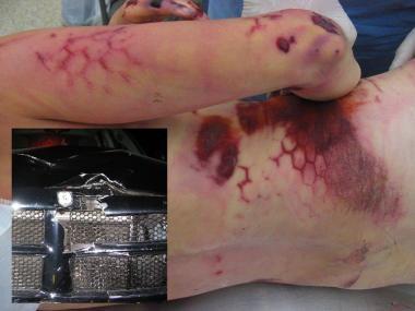 Photographs following a pedestrian struck by a tru