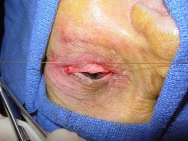 One set of double-armed sutures has been passed th