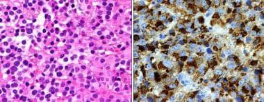 Prolactin (PRL)-secreting adenoma. Left: The cells