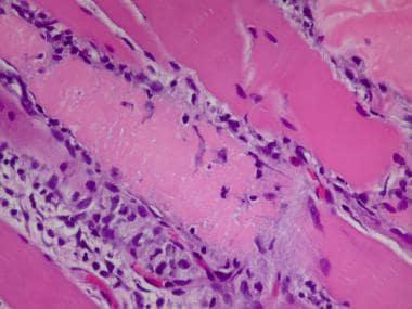 Polymyositis, myofiber necrosis, H&E frozen sectio