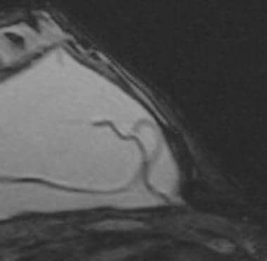 Magnetic resonance image shows the keyhole, or inv