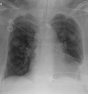 Chest radiograph in a 58-year-old man with squamou