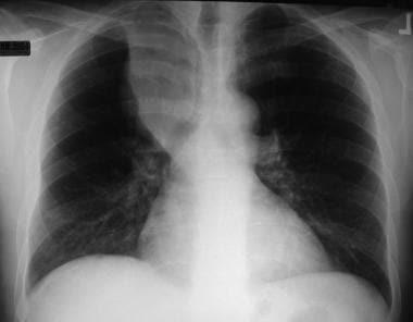 Non–small cell lung cancer. Right upper lobe colla