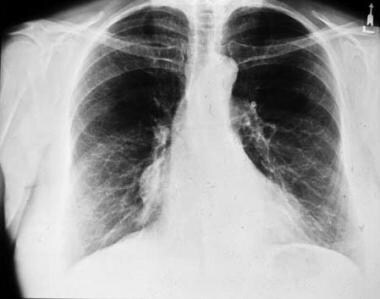 Low-lying thymoma. Plain chest radiograph shows a