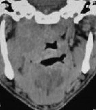 Nonenhanced CT scan (coronal view) shows thickenin