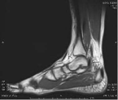 Sagittal T1-weighted image of the ankle shows the