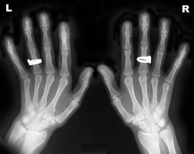 Radiograph of both hands of a 36-year-old woman re
